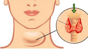 Deficiencia de hormona tiroidea: Hipotiroidismo