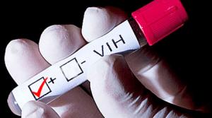 Norte de Santander en alerta por pacientes con colesterol alto y VIH