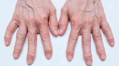 De la población que padece artrosis, la mitad pierden sus empleos