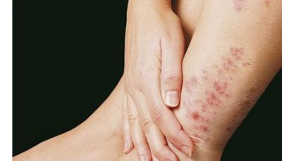Lepra, una enfermedad prevenible